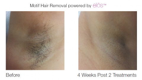 Laser Hair Removal San Antonio Laser Hair Clinic