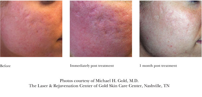 Sublative Rejuvenation for Acne Scarring Photos