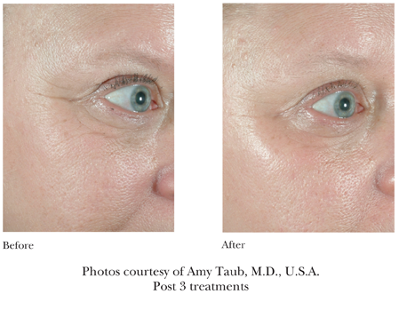 Sublative Rejuvenation for Fractional Skin Resurfacing